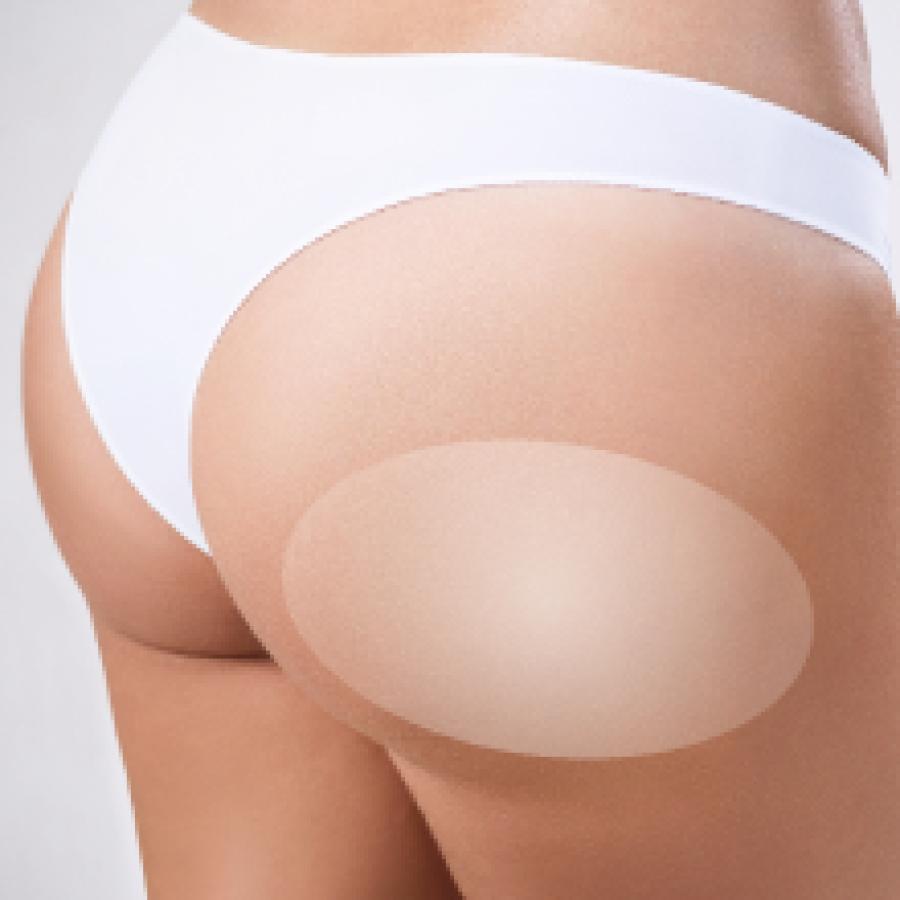 Buttocks Hifu Ultherapy Ulthera