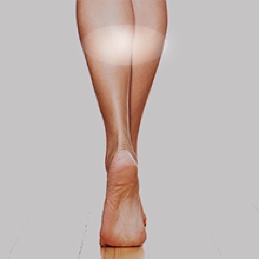 Legs Hifu Ultherapy Ulthera