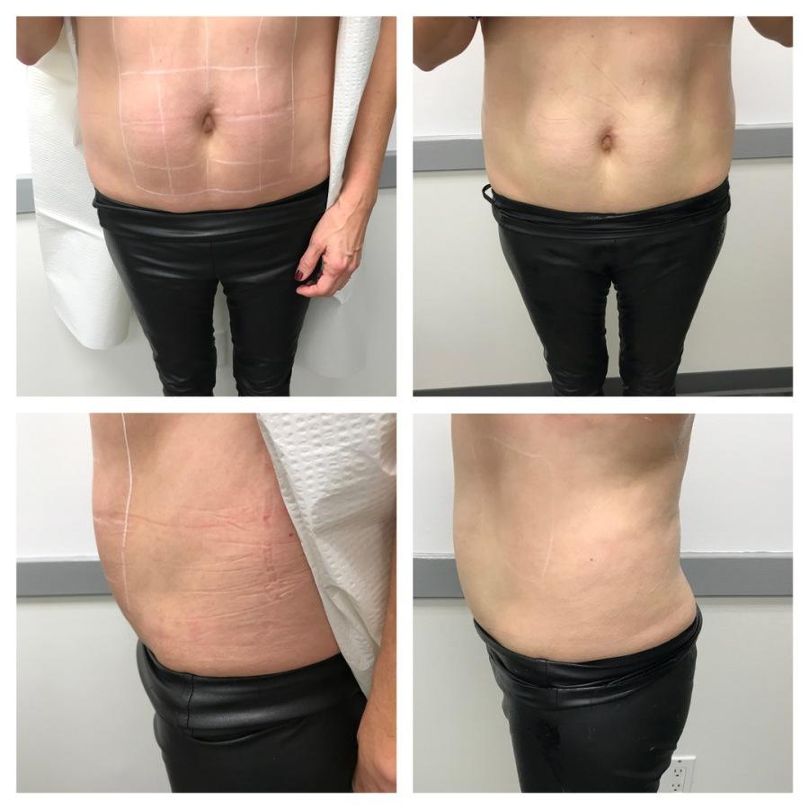 HIFU | Body Contouring | Skin Tightening | Ultherapy | Ray Basri MD